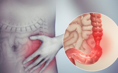 Hijama Cupping For Irritable Bowel Syndrome & Other Digestive Disorders (IBS)