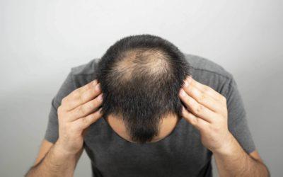 Hijama for Hair Loss and Alopecia